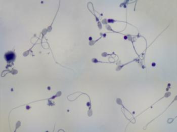 Качество и количество сперматозоидов падает от недостатка фолиевой кислоты в организме мужчины